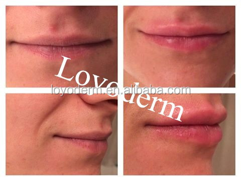 2 ml Visage Rides Correction HA Remplissage Injectable Hyaluronique Acide pour nez remodeler