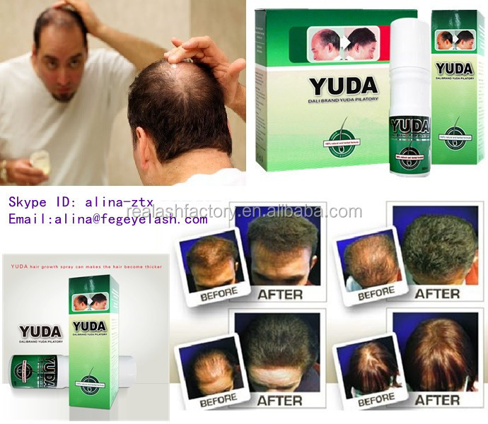 World best hair growth spray men hair regrowth oil YUDA hair loss spray