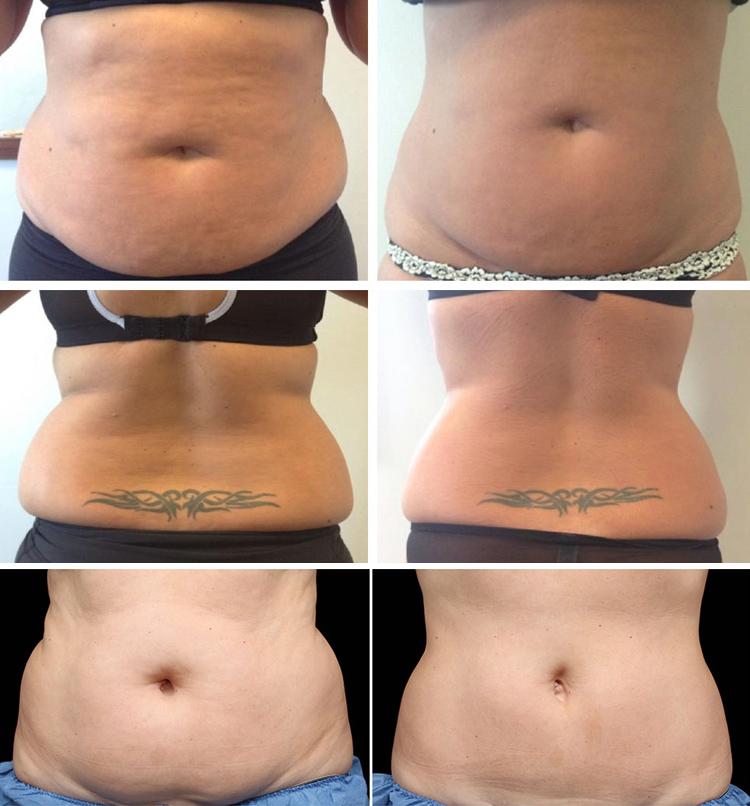 einfrieren fettzelle abnehmen maschine oem korper abnehmen bauch fett verlust fett einfrieren fettabsaugung vibrating fat verlust