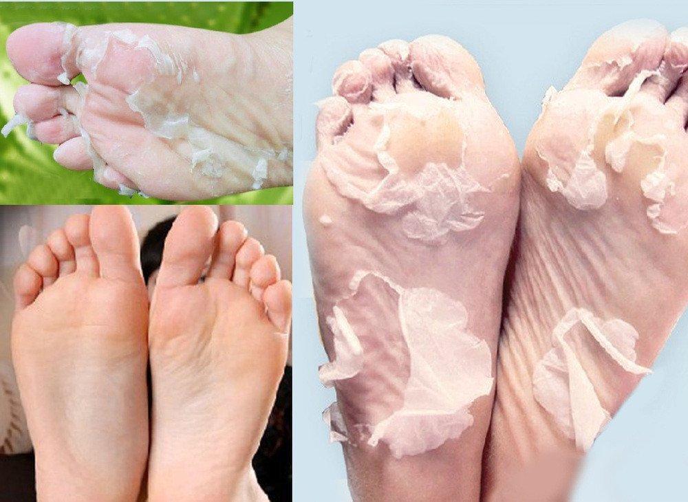 Scala 3 Packs=6pcs Exfoliating Foot Mask Socks Milk Bamboo Vinegar Peeling Mask Foot Care Mask Foot Spa Tender Skin Baby Feet Care Pedicure Socks (3 Packs)