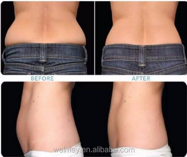 Plus récent spa ultrasonique d'ultrason hifu perdre de la graisse corporelle rapide