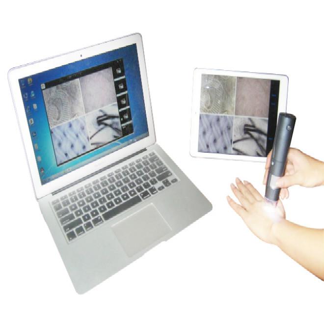 Wireless video otoscope, scalp hair follicle microscope camera