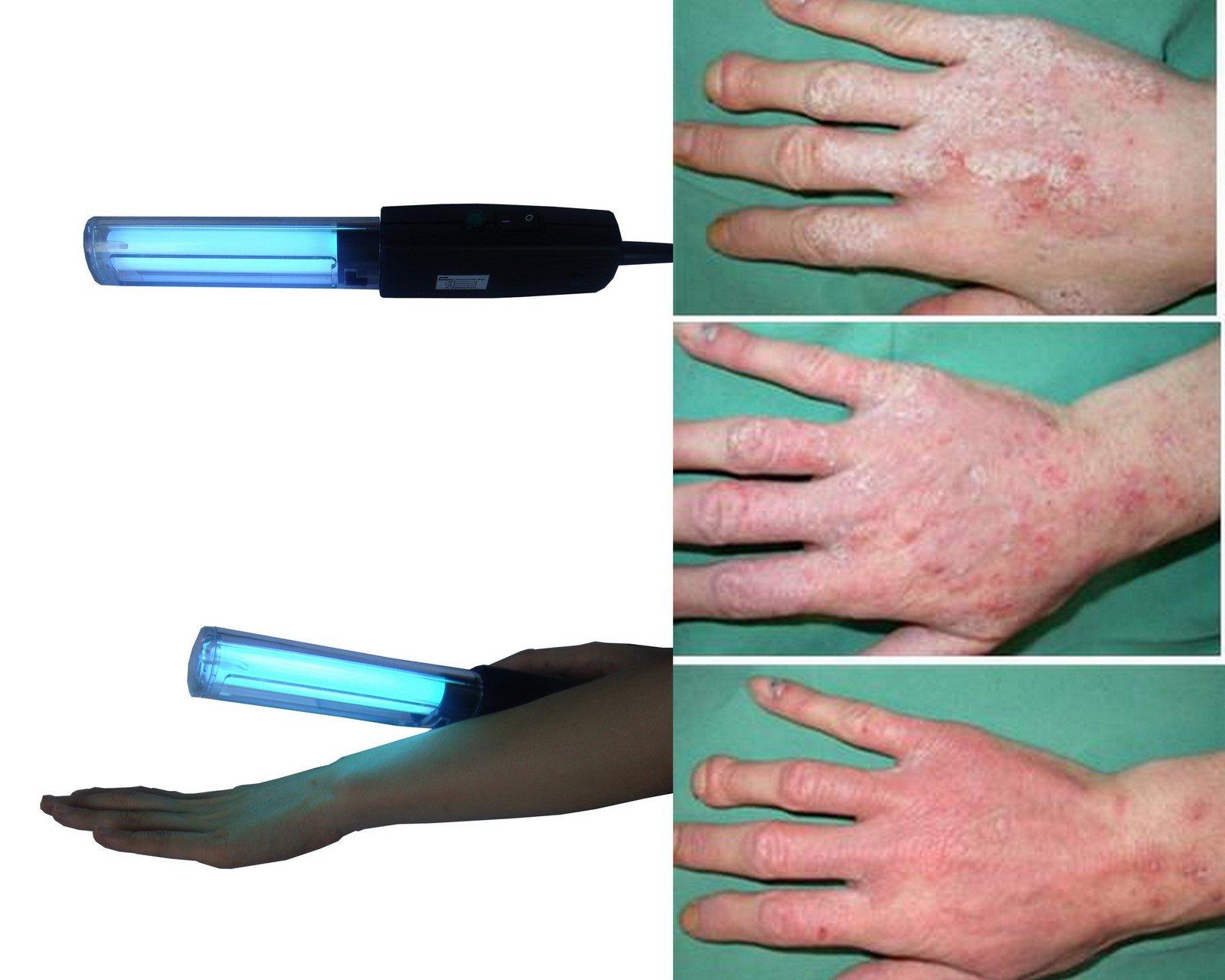 Vitiligo Uv 311nm Philip Lamp Psoriasis Vitiligo Eczema Atopic
