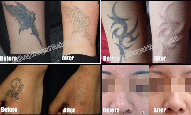 532nm 1064nm 1320nm Carbon Cream Tattoo Removal Pen/ Rejuvi Tattoo ...
