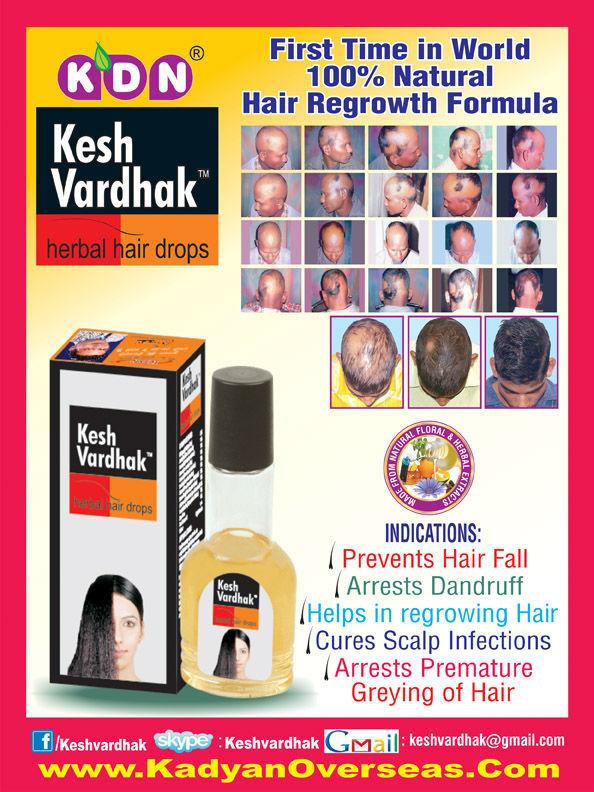Hot 2014 Anti Hair Loss Lotion Anti Hair Loss Treatment Lotion