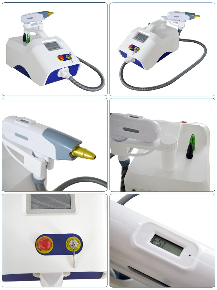 Q switch nd yag laser tattoo removal birthmark removal machine