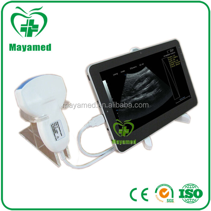 MY-A010A High quality portable Ultrasound machine Diagnostic System laptop / tablet ultrasound scanner for sale