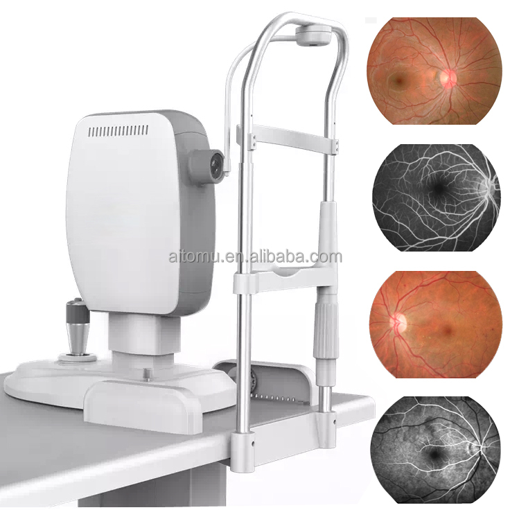 China Low Price Scanning Laser Ophthalmoscope