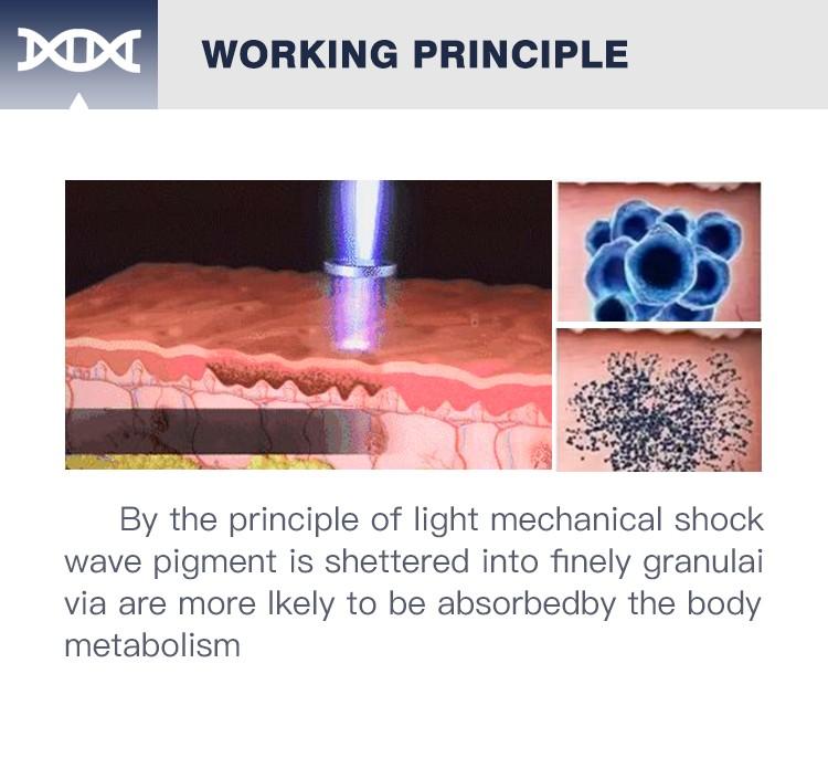 ndyag q-switch laser machine pigment removal