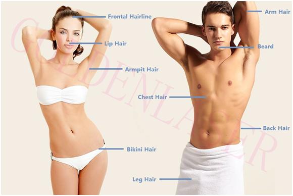 ホット販売ファッション 30% オフ! 医療マルチ波マイクロチャネル 3 in1 ダイオードレーザー 1064nm 755nm 808nm の脱毛