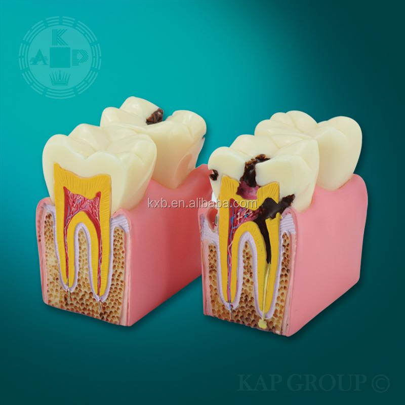 A06-006 De Plástico Humanos Anatómicos Dentales 3d Dientes Modelo ...