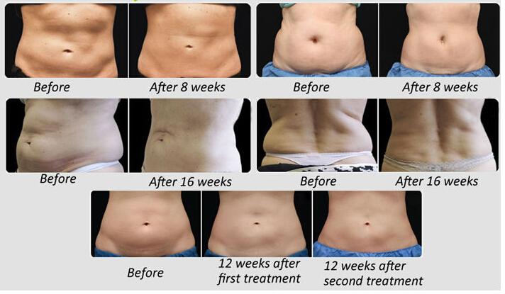 Phd fat loss range diet whey photo 4