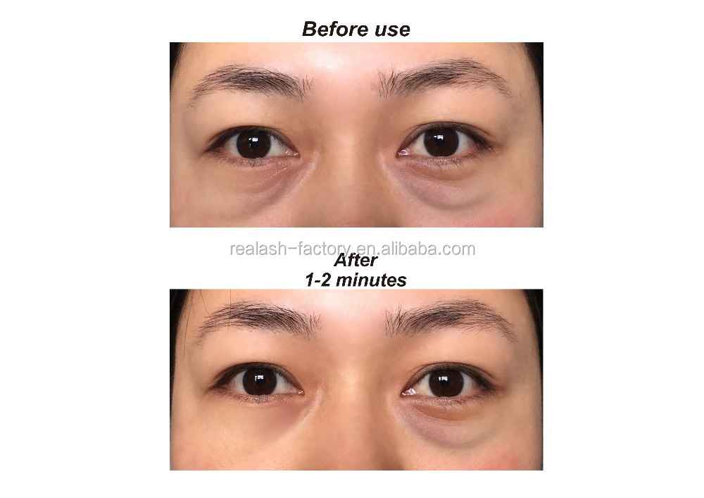 Best Anti Wrinkle Oil Eye Cream To Remove Eye Bags Instantly