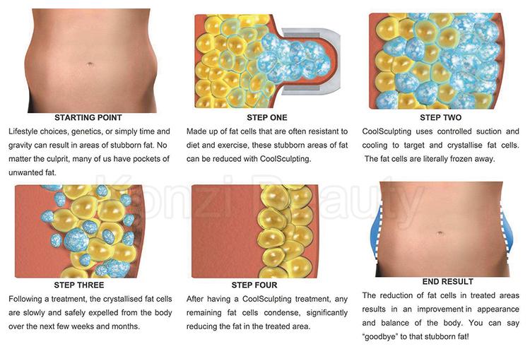 Dọc cryolipolysis máy/chất béo đóng băng criolipolisis phương pháp áp lạnh máy giá