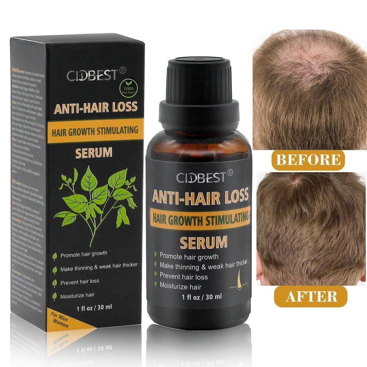 Anti Hair Loss Serum,Anti-Hair Loss Treatment,Natural Herbal Anti Hair Loss Hair Growth Serum-For Thinning Hair, Thickening & Regrowth Product, Fast Hair Growth Serum Support For Men & Women (30ML)