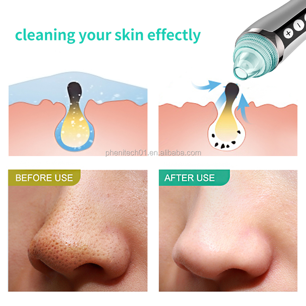 Новейший дизайн Private Label Электрический blackhead remover Уход за кожей лица пор пылесос