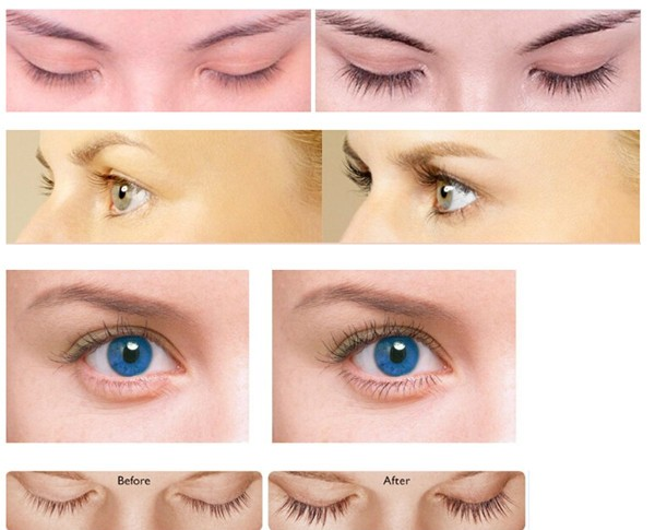 Private Label Eyelash & Eyebrow Growth Serum With Pentapeptide-17 ...