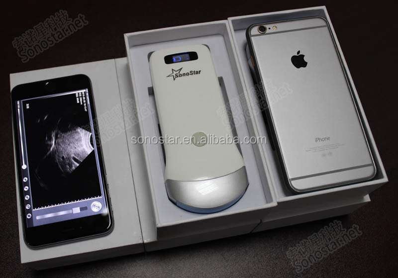 Ultrasound Probe For Iphone Price