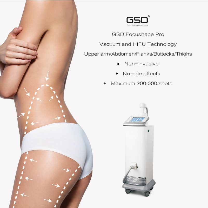 GSD HIFU body slimming cavitation machine