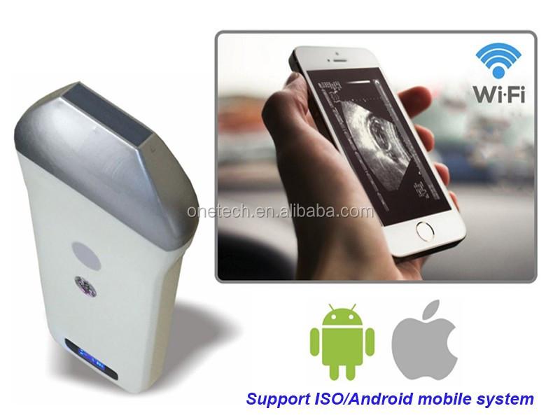 portable baby ultrasound machine