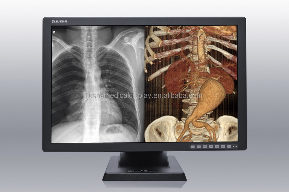 10(JUSHA-C26) 2M Color Seamless Imagen Displaveterinary x ray machine portable digitaly
