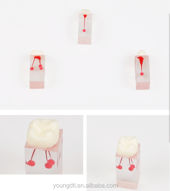 Endo Dental root canal modelo