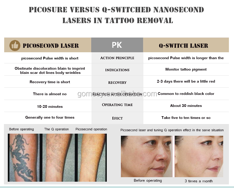 Effective result! High quality 2000mj America Newest picosecond laser picolaser all color tattoo removal equipment