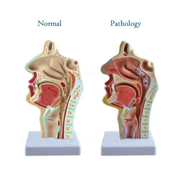 Mund Nase Kehle Rachen Lehrmodell Menschlichen Körper Anatomie Ent ...