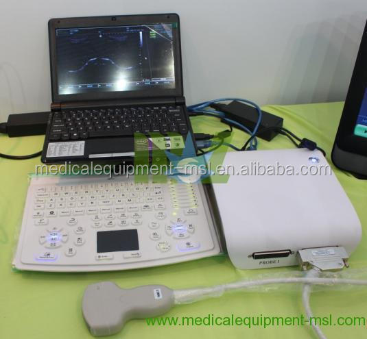 Mslpu15w Usb Cable Portable Ultrasound Pc Based Scanner