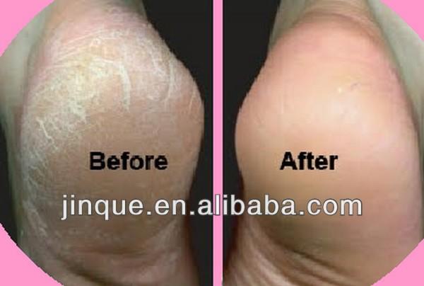 dry foot treatment