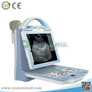 Hot Sale Full Digital Portable Ultrasound Device Abdominal and GYN Echo