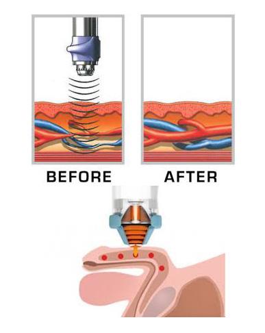 Smart-wave Erectile Dysfunction Treatment Machine Bs-swt2x ...