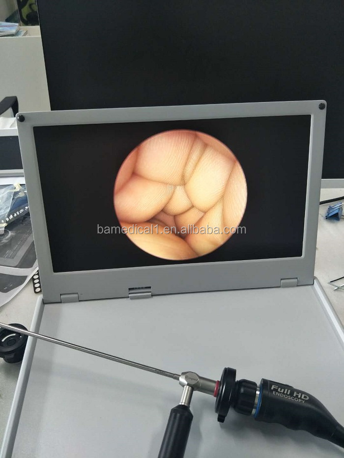 Surgical HD Integrated endoscope camera
