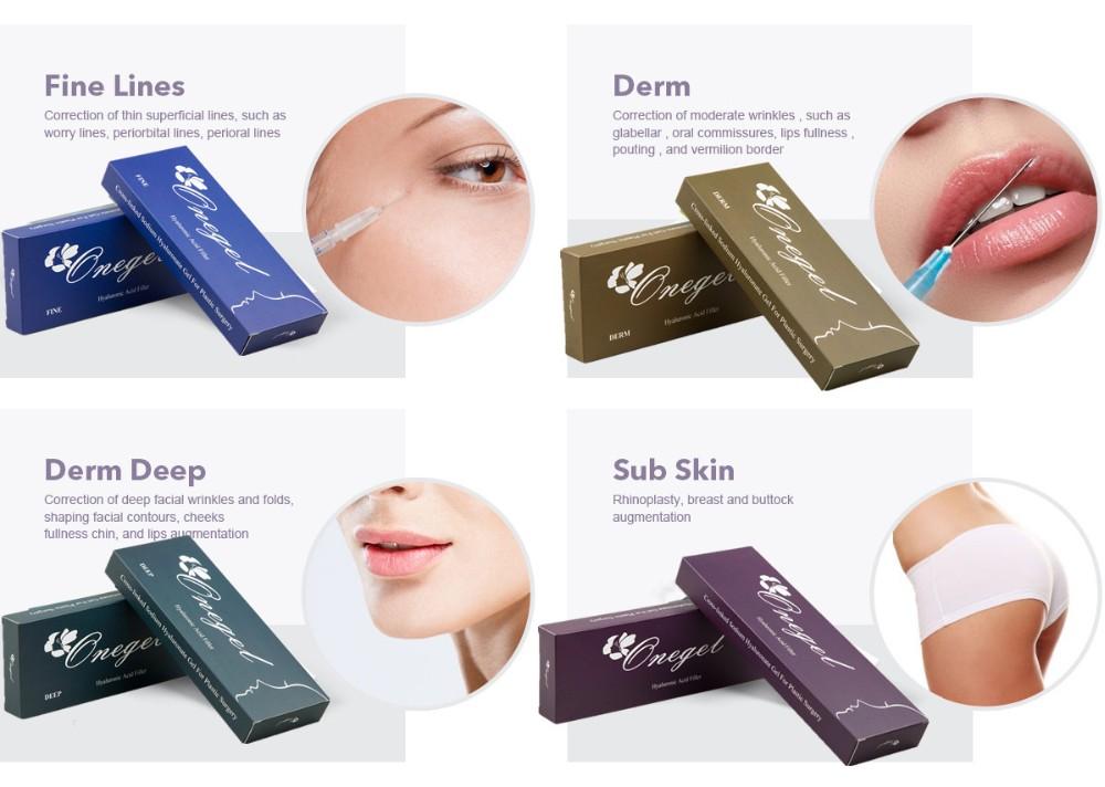 1ml Onegel Hyaluronic Acid Injection Lip Enhancement Gel Cross Link  Providers - Buy Hyaluron Acid Injection,Lip Enhancement Gel,Cross Link  Providers