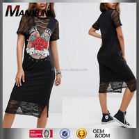 Fashionable Girl Casual Loose Fit Short Sleeves Printed Pattern Tshirt Dressed Rock Printing Lace Insert T-Shirt Midi Dress