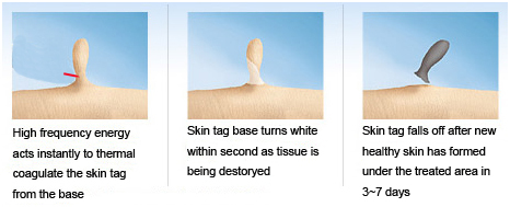Advanced High Frequency Skin Mole Removal Machine As
