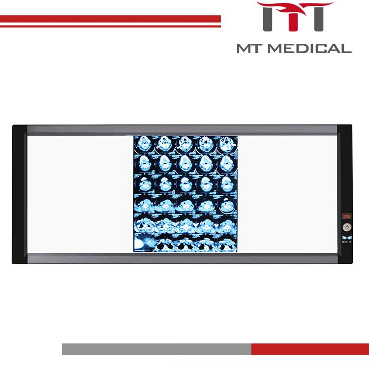 48028ba9e Médica Negatoscopio llevado triple dental espectador de película de rayos X