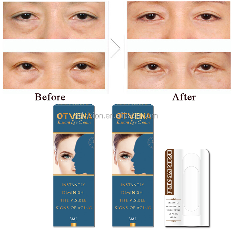 60s Effect Hydrating Eye Bag Remover Eye Cream, View Eye bag remover,  Product Details from Shenzhen JC Optoelectronics Co , Ltd  on Alibaba com