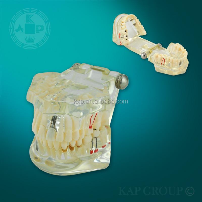 3d Transparente Dental/modelo/tamaño De La Vida De Los Dientes ...