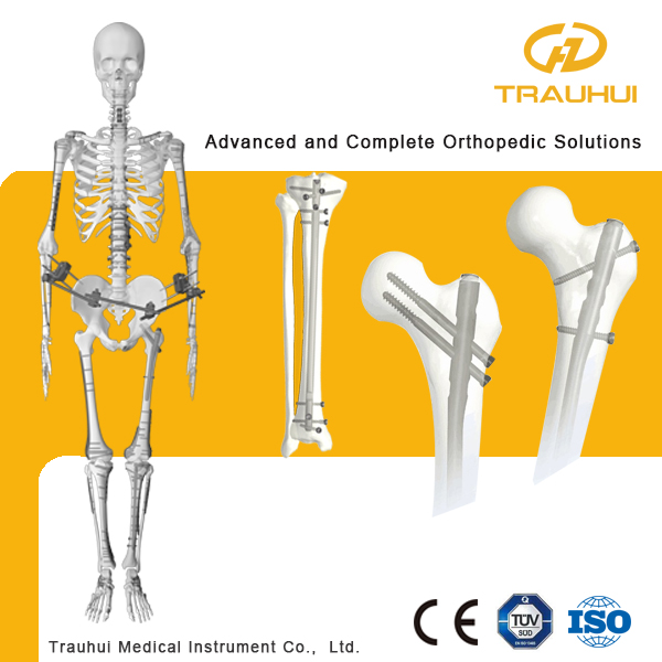 Tibia Interlocking Nail Gama Nail Orthopedic Instrumentimplant ...