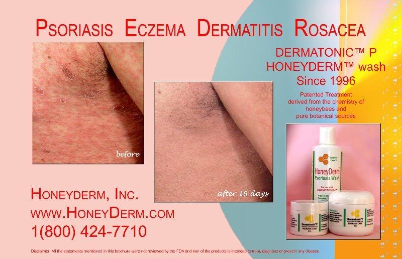 Anti Psoriasis Cream To Treat Psoriasis Eczema Dermatitis Rosacea Buy Anti Psoriasis Cream Safe Herbal Treatment For Psoriasis Honey Treatment For Psoriasis