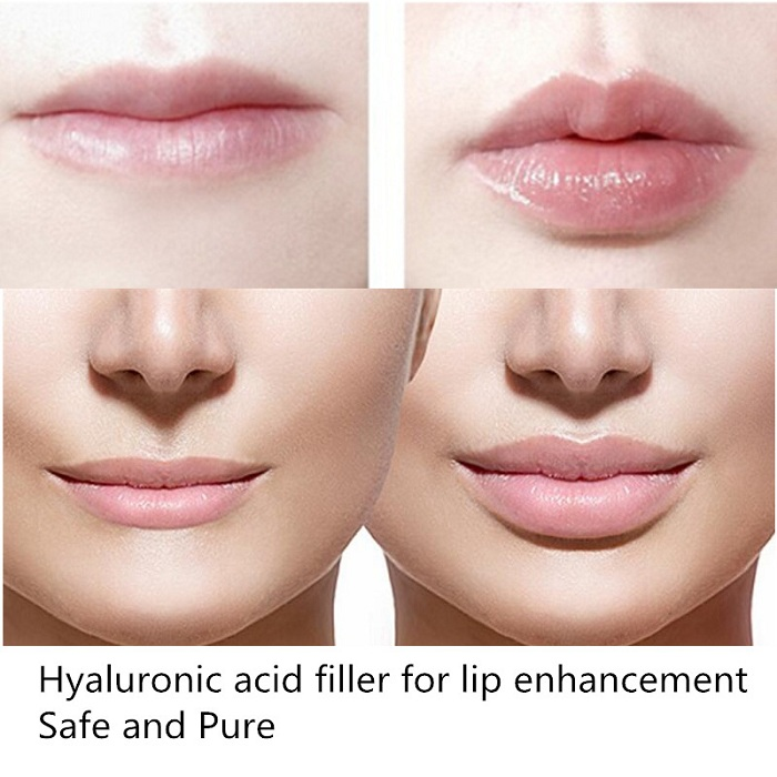 2ml Hyaluronic Acid Filler Gel <strong>Injection</strong> For Fuller Lips <strong>Injection</strong>