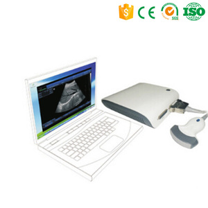 MY-A010 USB Ultrasound Probe Price Ultrasound B Scanner Box with 3D Imaging