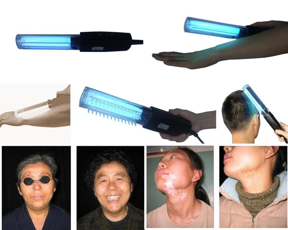 311nm UVB Lamps for skin disorder treatment-vitiligo/psoriasis/eczema