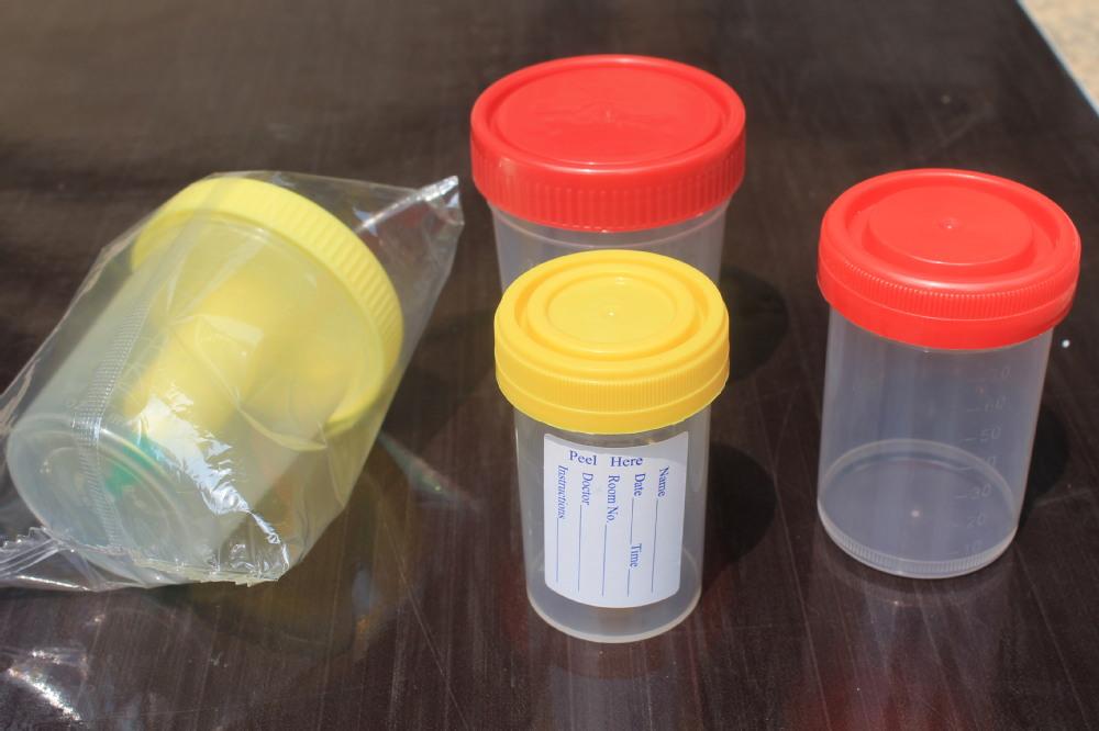 Lab Vacuum Urine Test Container Urine Specimen Bottles - Buy Urine ...