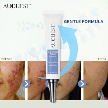Scar Removal Blackhead Removal Gel AUQUEST Natural Acne Cream Beauty Personal Skin Care