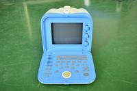 Newest ATNL51353A portable ultrasound scanner/ultrasonic test equipment/ultrasonic machine price