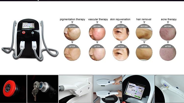 2016 hot sale IPL machine shr hair removal