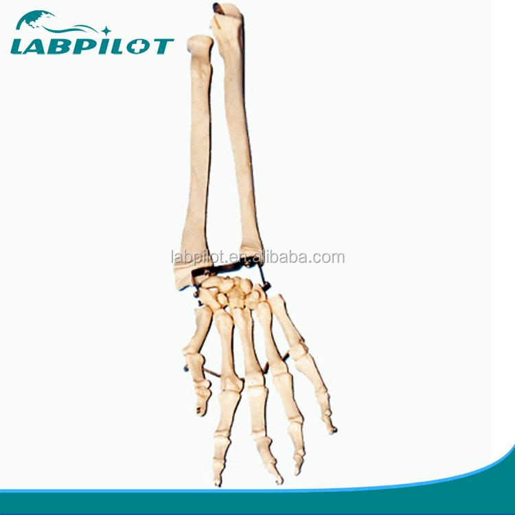 Palm Bone With Radius Bone And Ulna Bone Modelpalm Bone With Elbow
