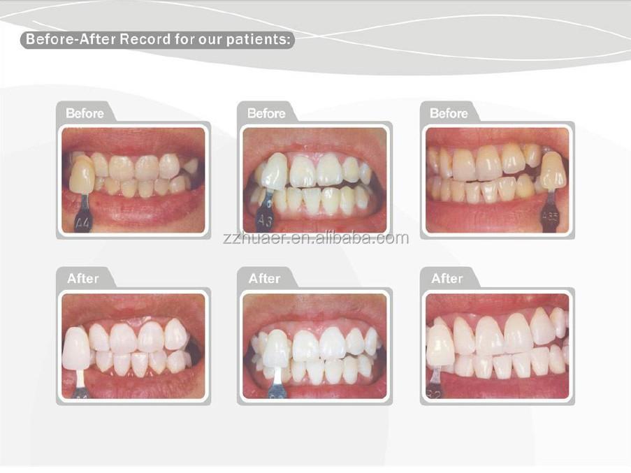 6 Hydrogen Peroxide Clinic Dual Barrel Teeth Whitening Gel
